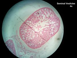 Under the Microscope - Seminal Veslicles by Astridyl