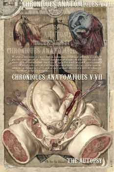 Chroniques Anatomiques V.VII,2 by misfitmalice