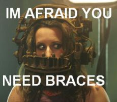 braces by Ulla-Andy