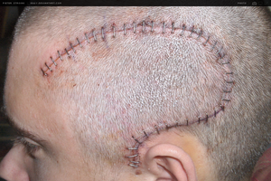 Brain surgery on Friday 13th by eggy