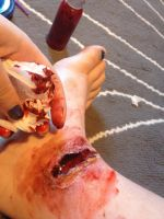 Latex ankle wound by Prosper-the-XVIII