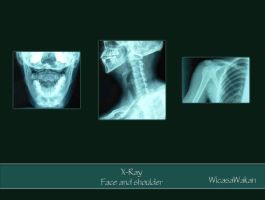 Xray face and shoulder set by Wicasa-stock
