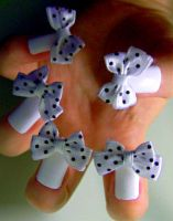 Bows by KayleighOC