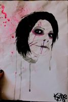 Gerard Way with scars by Kaethze
