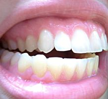 Teeth VII by KW-stock