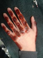 sfx burned hand by Robertdowneyjrfan