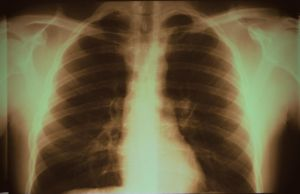 Lung X-ray by Darknight-Stock