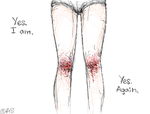 Lovely knees by Ann-Rentgen