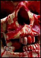 Bloody skull. by DecoyRobot