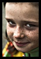 Freckles by Iedu