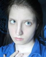 Duane Syndrome - Female - Left Eye by VioletSuccubus