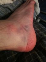 My sprained ankle by Volts48